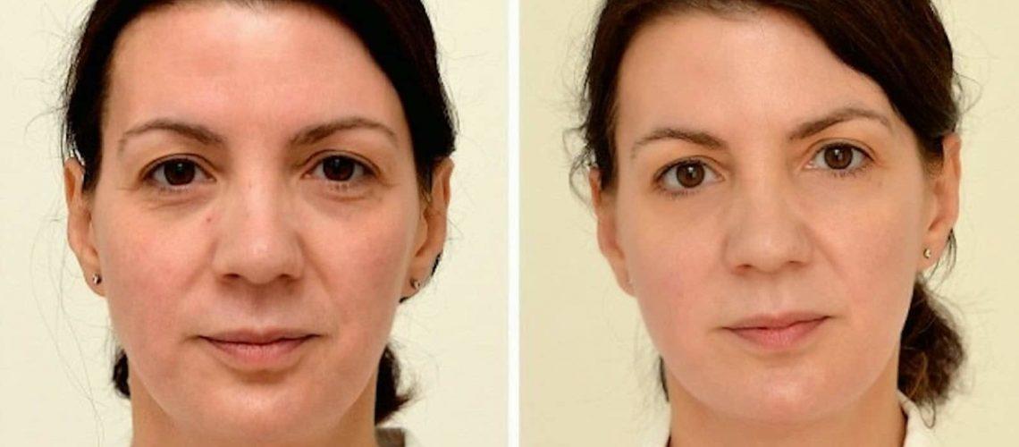 Mejora tu rostro bebiendo tres litros de agua al día